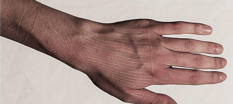 The Memory of Skin